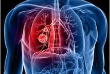 Cancer News / by Medindia Health Information