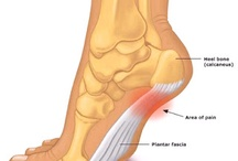 Physical Therapy and Foot and Ankle Pain