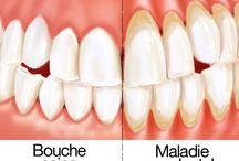 Dent gengivite