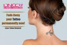 Laser Tattoo Removal | DNCC | Dr. Nishita's Cosmetic Clinic