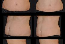 We Love Coolsculpting, and So Will You!