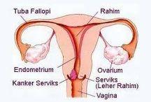 Obat Tradisional Kanker Rahim