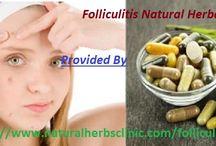 Folliculitis Herbal Treatment