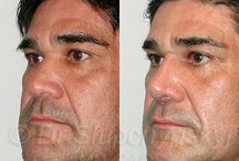 """Male Open Rhinoplasty / When choosing your Rhinoplasty Surgeon, it is important that you review other Rhinoplasty work that they have done. You do not want a Male Rhinoplasty Surgeon who creates the same shape and size on every patient. We refer to this as """"Doctor X nose"""", and it can spell bad news for your face if the surgeon simply does a slapdash job that doesn't complement your other features."""