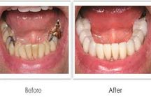 Root Canal Treatment i