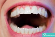 Teeth Whitening / Dr. Ron Nourian and his team of Los Angeles dentists offer multiple teeth whitening options, all of which are safe and relatively painless.