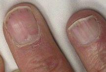 unghie malattie
