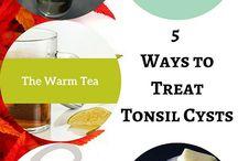 Tonsil  Oral   Throat   EarNoseThroat health