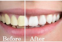 Teeth Whitening Dentist / Looking for professional laser teeth whitening dentist in New York, Manhattan? Cosmetic Dentistry NYC has the top teeth whitening dentists.
