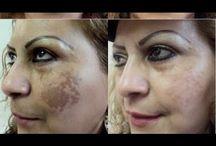 Videos mascarillas aclaradora para la piel
