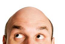Alopecia / Tablero que recoge los mejores pines acerca de la alopecia, calvicie común y alopecia androgenética.