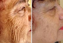 Facial Strengthening Aerobics Will Help You Acquire A Non-Invasive Facelift / Amazing And Useful Face Exercises For A More Youthful Looking Skin