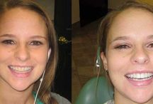 BeautifulSmile / We are changing Patients' lives One Smile at a Time! #BrighterSmile #AlisoViejo