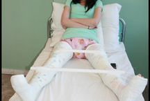 Casts and Nappies