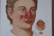 The Human Body, Medicine, Skin Diseases. / Isidor Neumann - Atlas der Hautkrankheiten (Atlas for Skin Diseases) - 1890