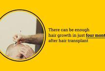 FUE / FUT Karachi hair transplant
