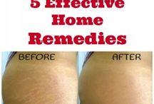Stretch marks remedy