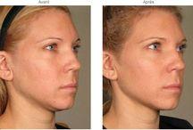Ulthera / Ulthera (ou Ultherapy) est une nouvelle technique non-chirurgicale qui fait appel aux ultrasons focalisés. Le but est de traverser la peau sans léser les couches les plus superficielles pour agir en profondeur. Il permet de traiter le relâchement cutané du visage. Ulthera peut agir à différentes profondeur de la surface de la peau; il s'agit donc d'un traitement global de la peau.