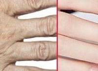 cild bakımi