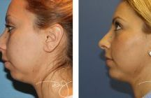 Chin Lift Before and After Photos / Whether you are interested in obtaining chin lift or any other type of plastic surgery, you want a doctor with true expertise working on your behalf. Dr. J is one of the most respected physicians in the field of plastic surgery. / by Dr.J Plastic Surgery
