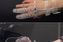 El için splintler