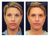 Chin Liposuction / Chin liposuction (called Submental Liposuction) will reduce excess fat under the chin, neck, and jowls. These fat collections are often not metabolized easily with diet and exercise and thus rarely improve with weight loss. During a consultation, a plastic surgeon will evaluate whether you have enough elasticity for the skin to contract after the removal of the underlying fat #beforeandafter #liposuction #raleigh #drmichaellaw @Blue Water Spa