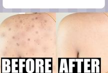 Back Acne Remedies - Back Acne Treatment / #backacneremedies #backacnetreatment #howtogetridofbackacne #howtogetridofbackacnefast #howtogetridofbackacnediy