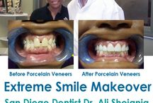 Porcelain Veneers in San Diego / Our office is one of the most comprehensive Porcelain Veneers Lumineers centers in San Diego, California. Porcelain Veneers or Lumineers can only be made from patented Cerinate® porcelain. At Extreme Smile Makeover in San Diego California Dr. Ali Shojania provides Porcelain Veneers Lumineers for patients. http://www.extremesmilemakeover.com/ Free Consultation (888) 673-2144