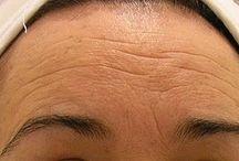 Prevención de arrugas en la piel