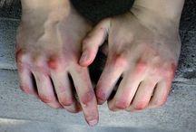 ° Bruises
