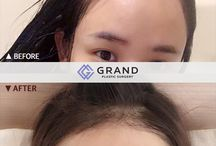 Grand Plastic Surgery Before&After