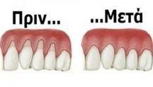 υγειηνή δοντιών