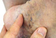 Horrible veins