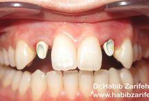 dental implants Lebanon Beirut top dentist Dr.Habib Zarifeh dental clinic ISO 9001 / Hollywood smile veneers Lumineers Beirut Lebanon number one dentist and dental clinic ISO 9001 by Dr.HAbib Zarifeh the Laser dentistry few specialist in Lebanon. CALL US NO: +96170567444 (WhatsApp...) Http://www.hollywoodsmilecost.wordpress.com http://www.hollywoodsmilebeirutlebanon.com http://www.youtube.com/beiruthollywoodsmile http://www.facebook.com/hollywoodsmilelebanon http://www.linkedin.com/in/hollywoodsmile
