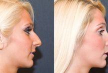How to Select the Right Rhinoplasty Surgeon in India