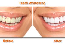 Tooth whitening & jewellery / We do provide tooth treatments that makes your smile more attractive..