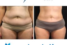 Before and After / Diets are temporary. Freezing is forever! Want to know if CoolSculpting works? It does! Check out some of the before and after pictures from people who've been treated with the CoolSculpting Procedure. Book your Free consultation today at (818) 336-4377.