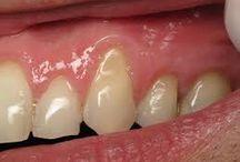 Teeth and gum health