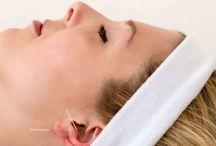 Ear acupuncture / Treatment as given at Oslo Akupunkturklinikk