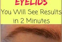 Sagging Eyelid