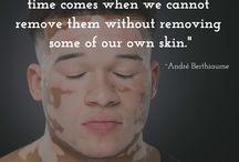 Vitiligo Inspiration / #Vitiligo Inspiration & Quotes
