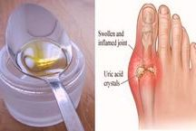 Olive Oils for bunions