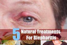 Blepharitis Natural Treatment