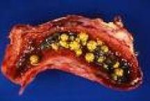 Gallbladder Stones Symptoms and Treatments