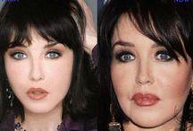 Isabelle Adjani Plastic Surgery