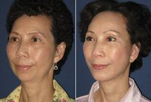 Plastic Surgery: Before and After / Explore a variety of before and after photos of patients who have received transformative plastic surgery procedures from Dr. Ali Adibfar - one of Toronto's best plastic surgeons.