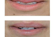 Before and Afters: Restylane Silk / Restylane Silk Before and After Pictures from Ayala ENT and Facial Plastic Surgery