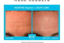 The Proof is in the Pictures! / Results matter!   Look at these Before & After Photos to see for yourself how Rodan + Fields Regimens have improved their skin. Preferred Customers that contact me will receive 10% discounts on all orders and free shipping. All products are 60 day empty container money back guarantee!