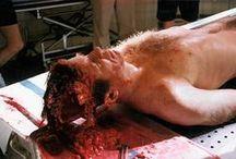 Autopsy photos