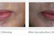 Lip Reduction | Thinning Seattle | Bellevue